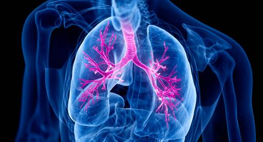 L'asthme sévére